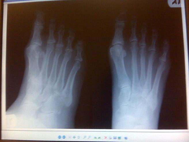 Beth's right foot